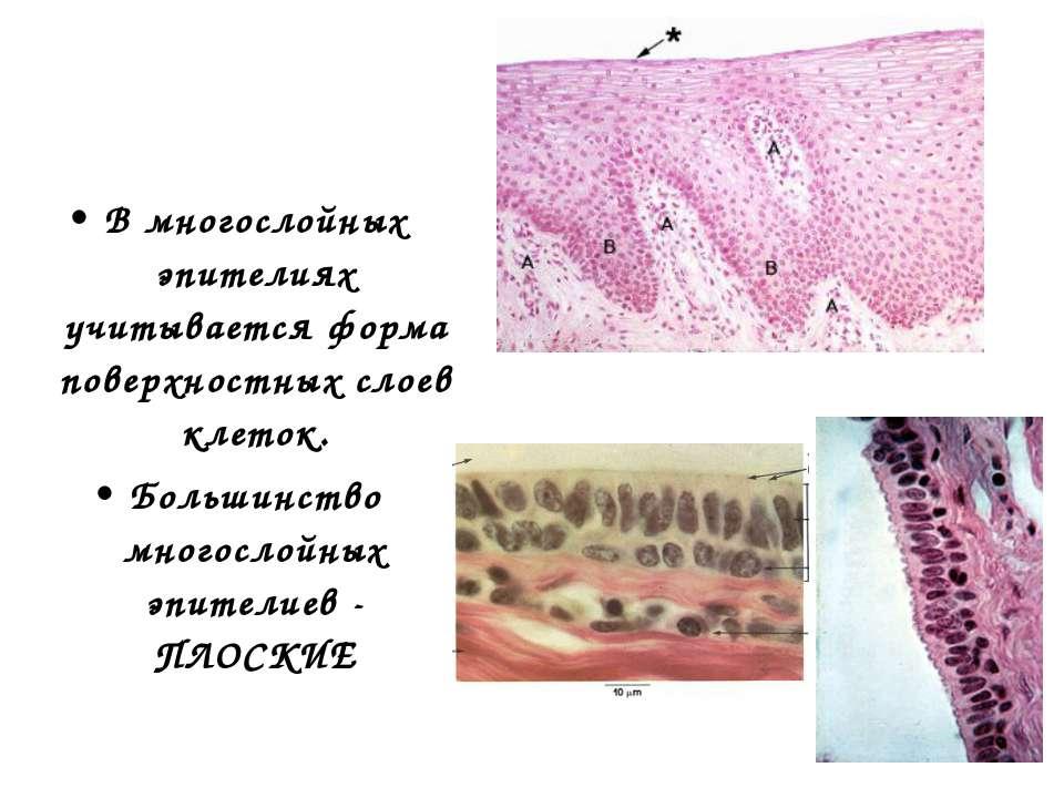 В многослойных эпителиях учитывается форма поверхностных слоев клеток. Больши...