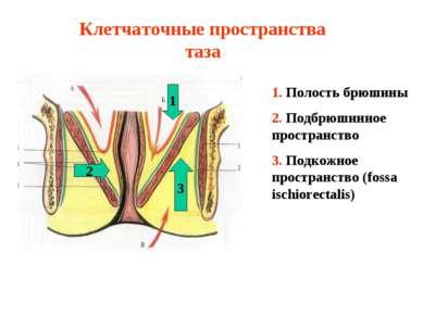 Клетчаточные пространства таза 1. Полость брюшины 2. Подбрюшинное пространств...