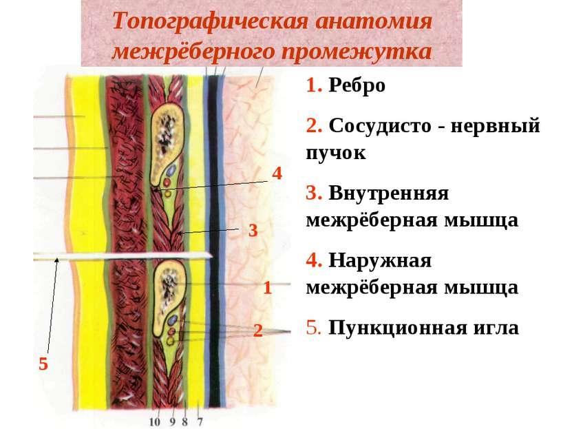 Топографическая анатомия межрёберного промежутка 1. Ребро 2. Сосудисто - нерв...