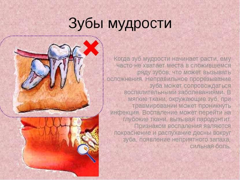 К чему режется зуб мудрости приметы
