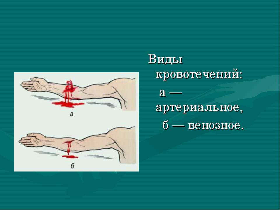 Виды кровотечений: а— артериальное, б— венозное.
