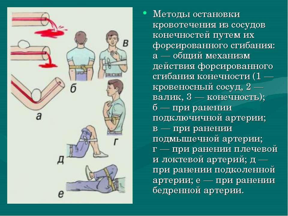 Методы остановки кровотечения из сосудов конечностей путем их форсированного ...