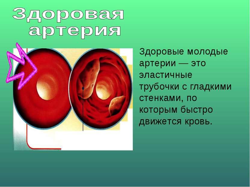 Здоровые молодые артерии — это эластичные трубочки с гладкими стенками, по ко...