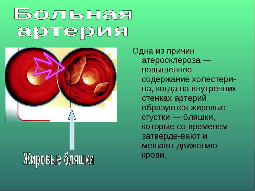 Одна из причин атеросклероза — повышенное содержание холестери на, когда на в...