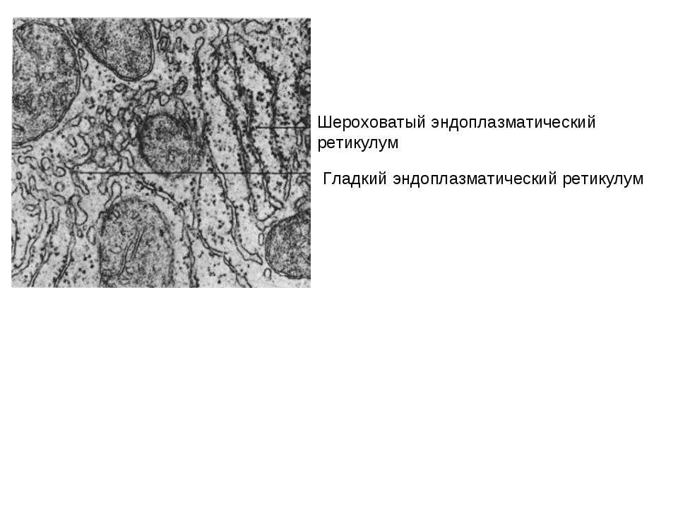 Шероховатый эндоплазматический ретикулум Гладкий эндоплазматический ретикулум