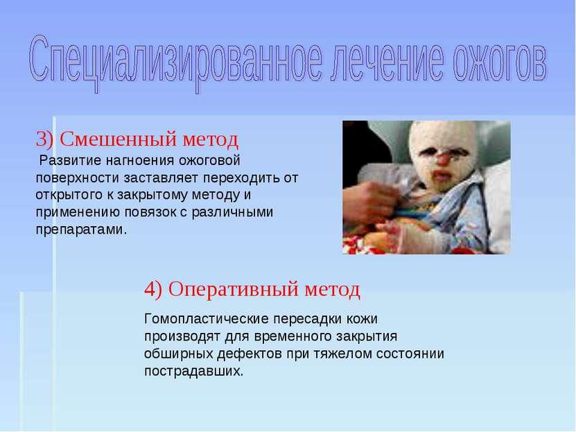 4) Оперативный метод Гомопластические пересадки кожи производят для временног...