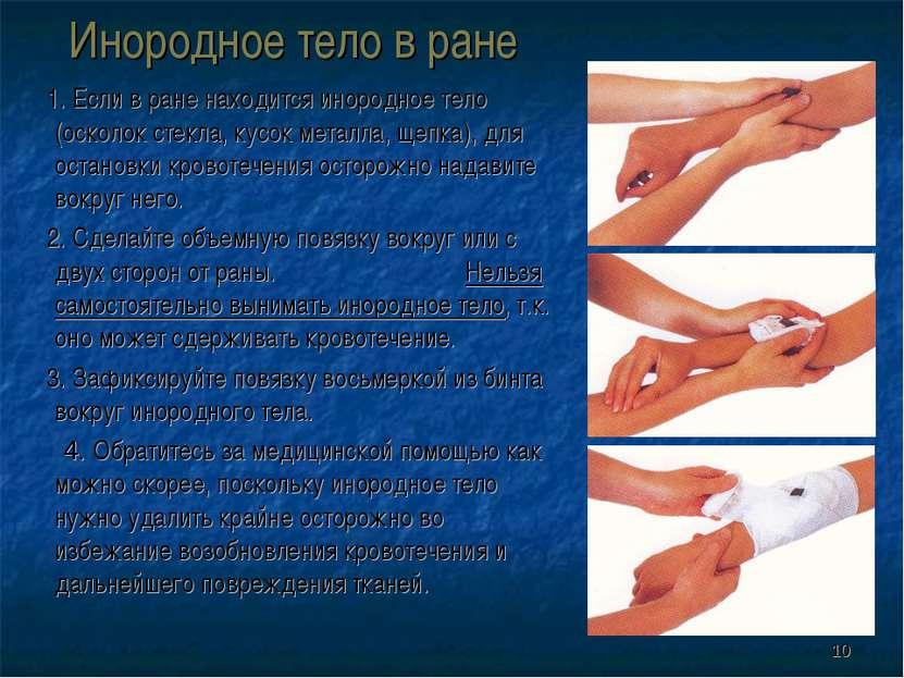 * Инородное тело в ране 1. Если в ране находится инородное тело (осколок стек...