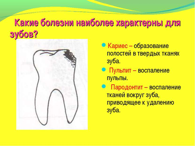 Какие болезни наиболее характерны для зубов? Кариес – образование полостей в ...