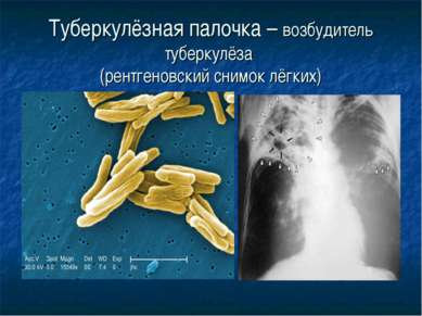 Туберкулёзная палочка – возбудитель туберкулёза (рентгеновский снимок лёгких)