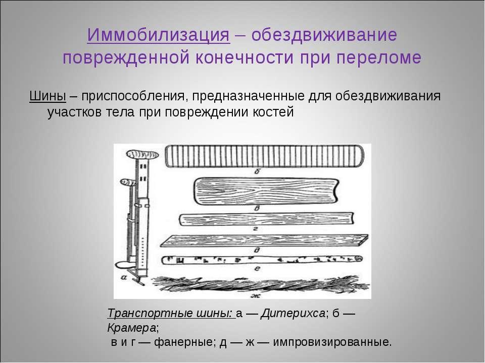 Иммобилизация – обездвиживание поврежденной конечности при переломе Шины – пр...