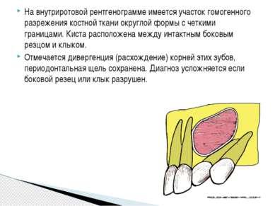 На внутриротовой рентгенограмме имеется участок гомогенного разрежения костно...