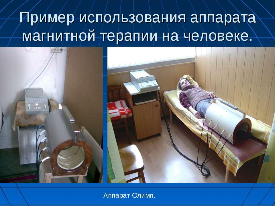 Пример использования аппарата магнитной терапии на человеке. Аппарат Олимп.