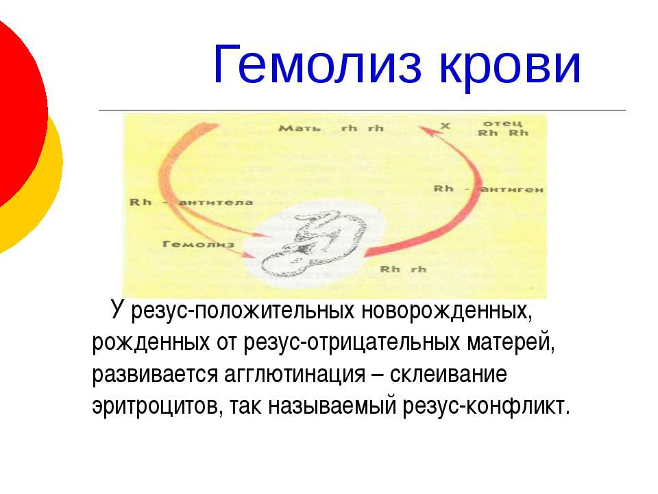 Гемолиз крови У резус-положительных новорожденных, рожденных от резус-отрицат...