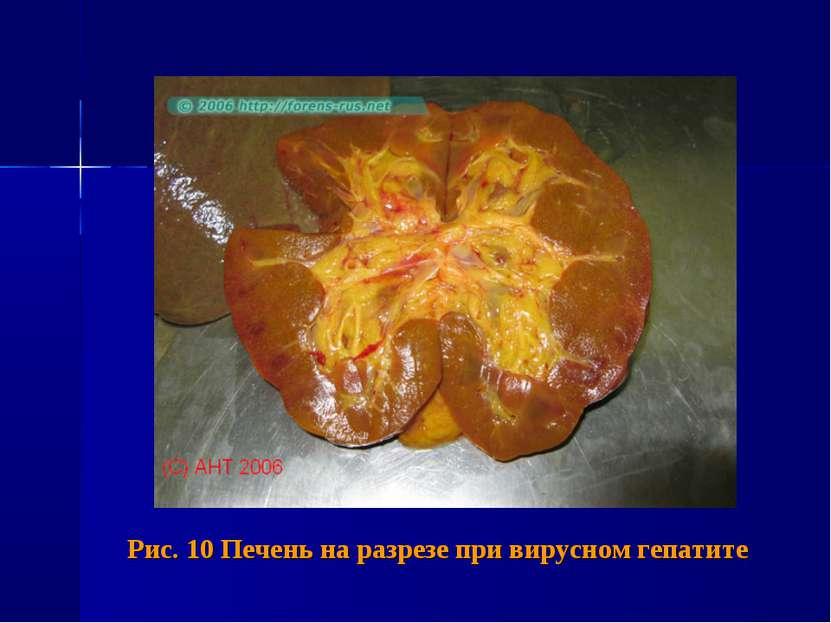 Рис. 10 Печень на разрезе при вирусном гепатите