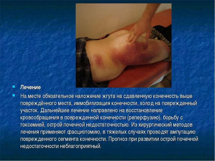 Лечение На месте обязательное наложение жгута на сдавленную конечность выше п...