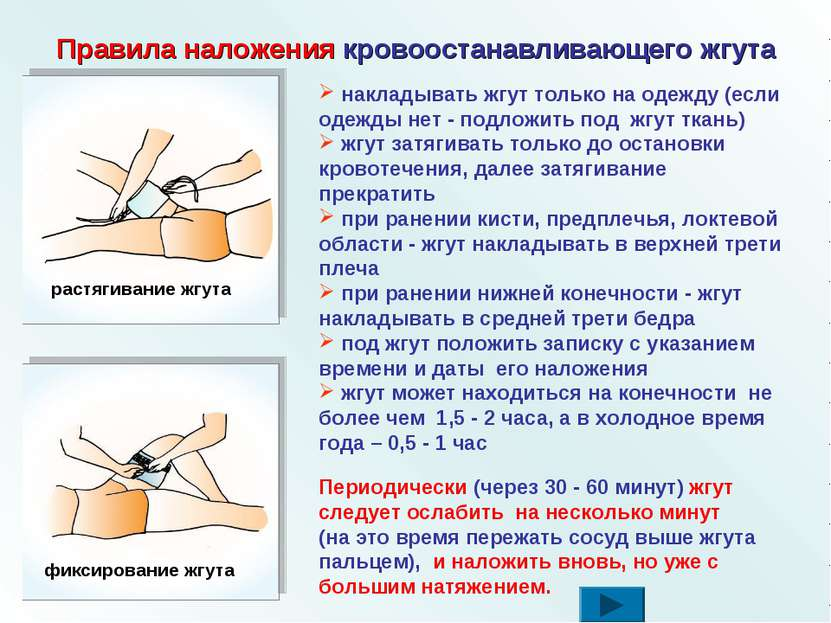 Правила наложения кровоостанавливающего жгута накладывать жгут только на одеж...