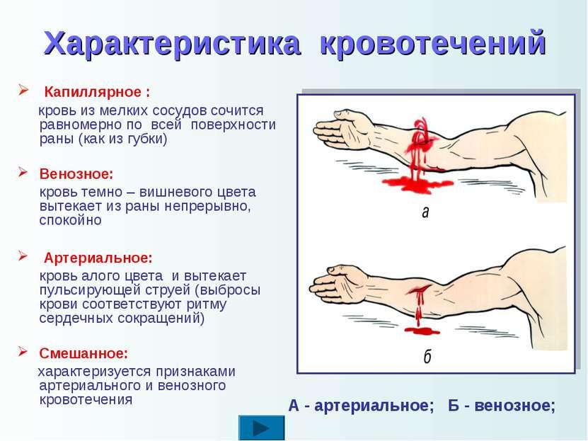 Характеристика кровотечений Капиллярное : кровь из мелких сосудов сочится рав...