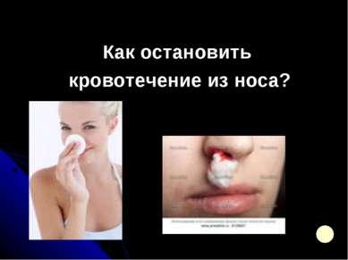 Как остановить кровотечение из носа?