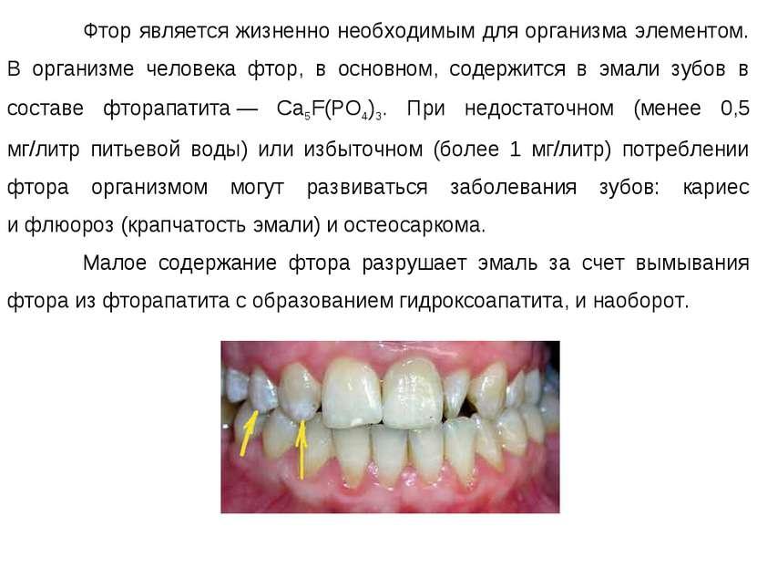 Фтор является жизненно необходимым для организма элементом. В организме челов...
