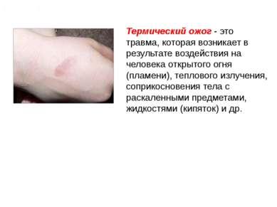 Ожог (термический ожог) Термический ожог - это травма, которая возникает в ре...