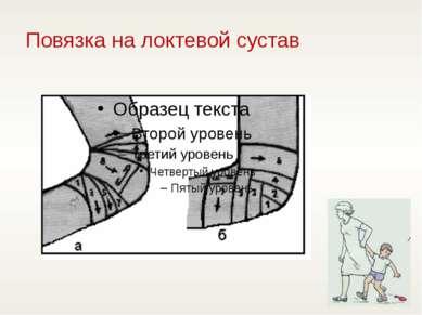 Повязка на локтевой сустав