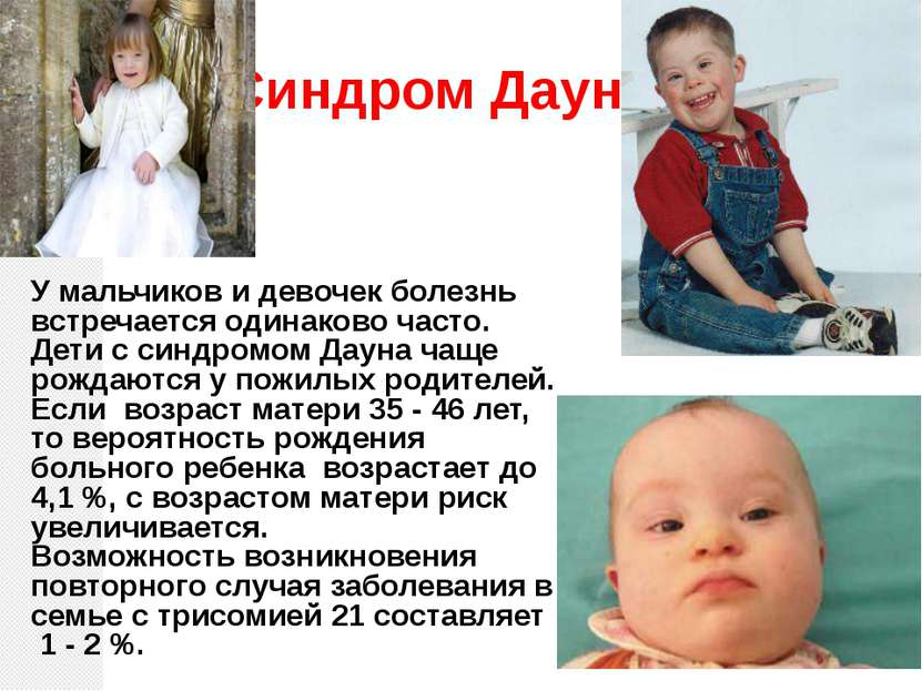 Синдром Дауна У мальчиков и девочек болезнь встречается одинаково часто. Дети...