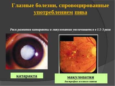 Глазные болезни, спровоцированные употреблением пива Риск развития катаракты ...