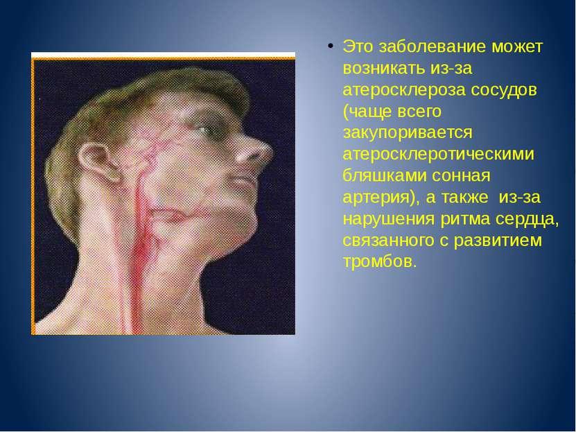 Котлов В.В. Это заболевание может возникать из-за атеросклероза сосудов (чаще...