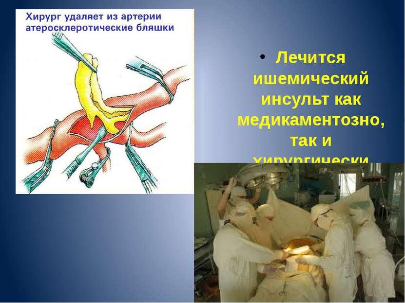 Котлов В.В. Лечится ишемический инсульт как медикаментозно, так и хирургически