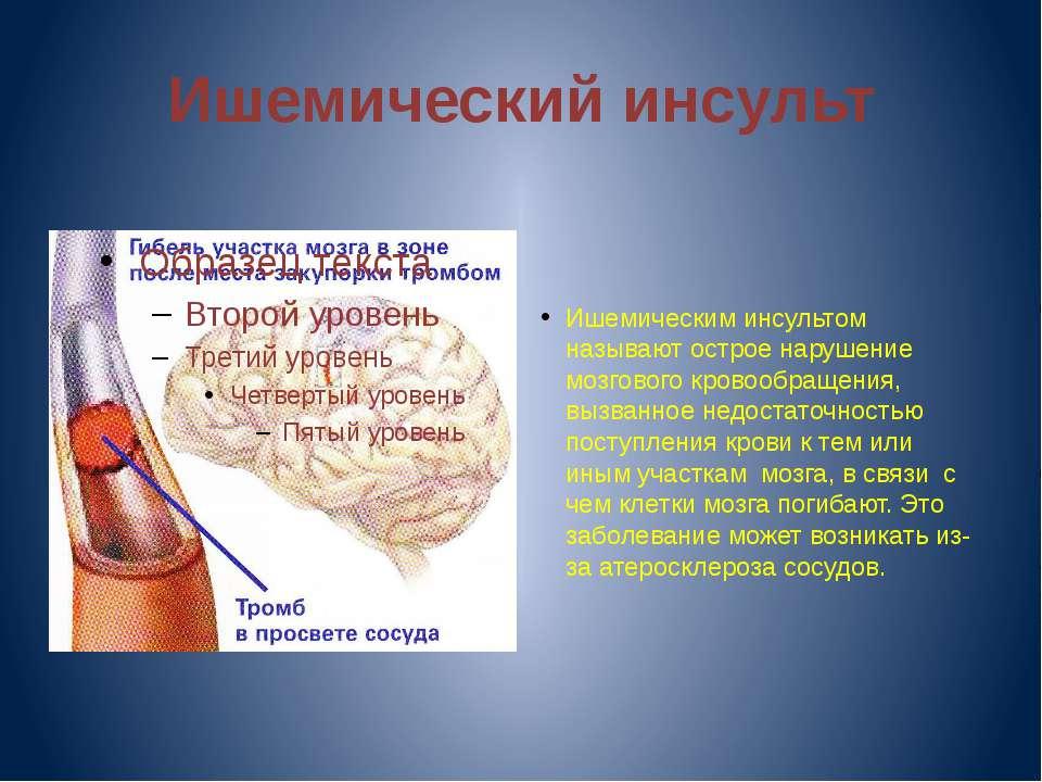 Ишемический инсульт Ишемическим инсультом называют острое нарушение мозгового...