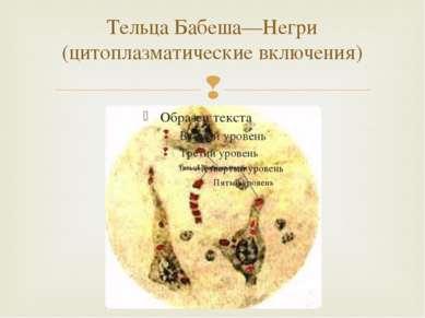 Тельца Бабеша—Негри (цитоплазматические включения)