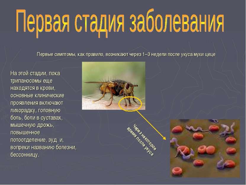 Первые симптомы, как правило, возникают через 1–3 недели после укуса мухи цец...
