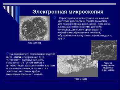 Электронная микроскопия Характерная, используемая как важный критерий диагнос...