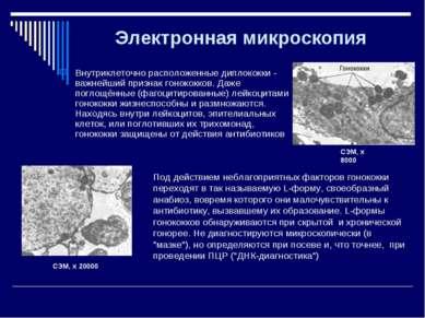 Электронная микроскопия Внутриклеточно расположенные диплококки - важнейший п...