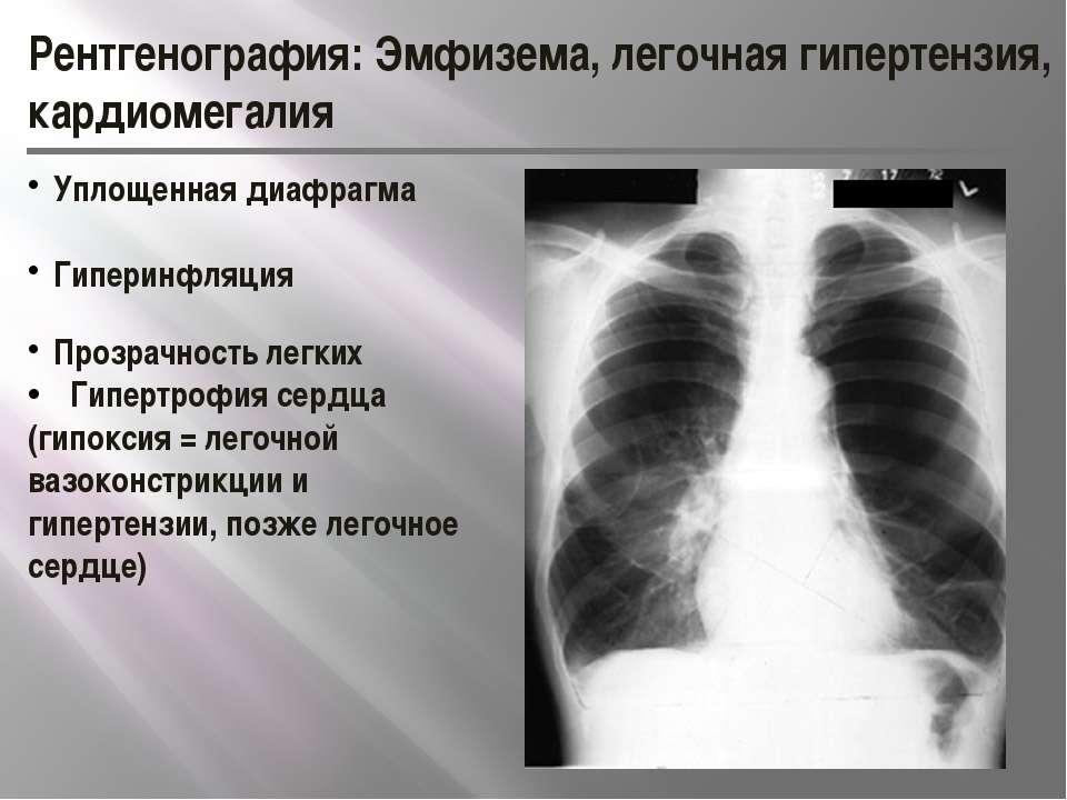 Рентгенография: Эмфизема, легочная гипертензия, кардиомегалия Уплощенная диаф...