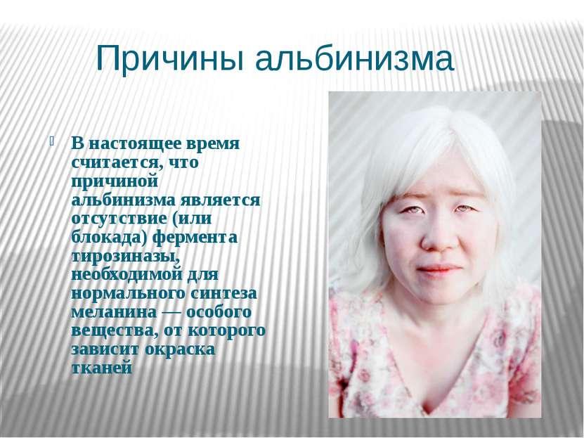 Причины альбинизма В настоящее время считается, что причиной альбинизма являе...