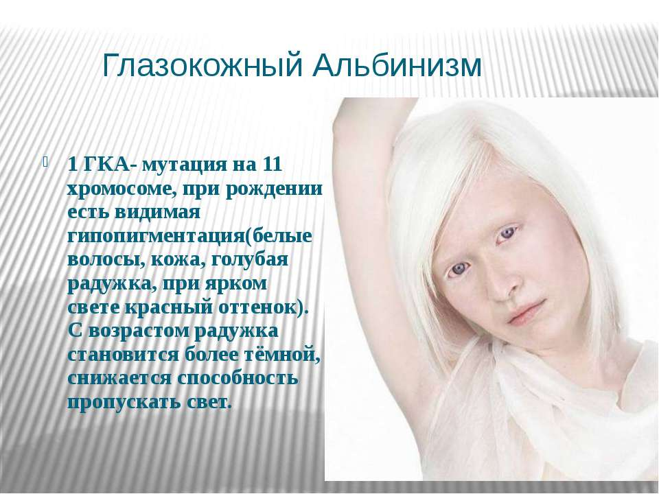 Глазокожный Альбинизм 1 ГКА- мутация на 11 хромосоме, при рождении есть видим...