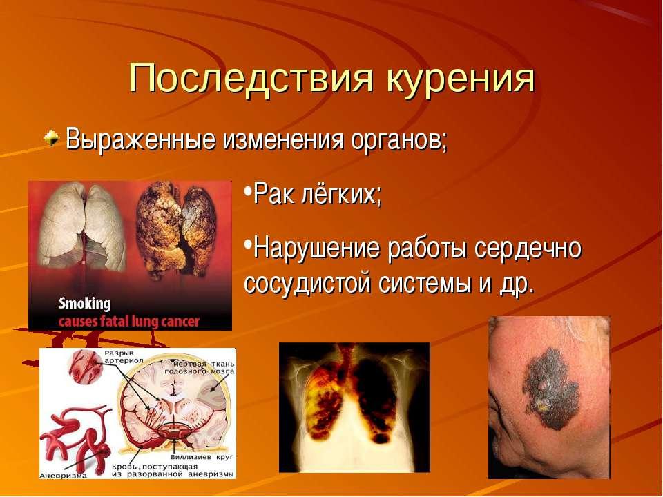 Последствия курения Выраженные изменения органов; Рак лёгких; Нарушение работ...