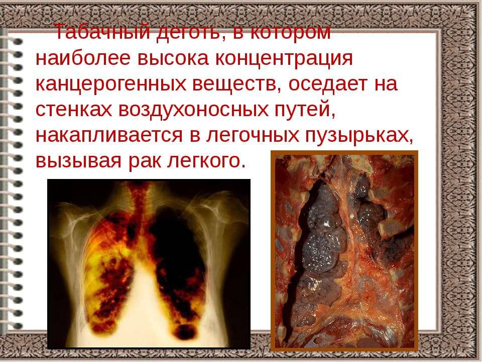 Табачный деготь, в котором наиболее высока концентрация канцерогенных веществ...