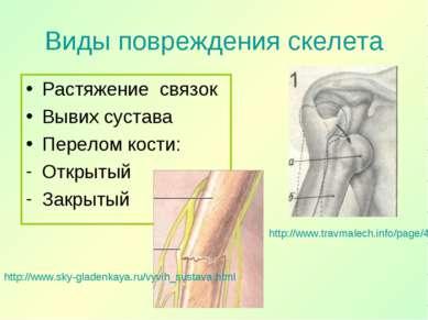 Виды повреждения скелета Растяжение связок Вывих сустава Перелом кости: Откры...