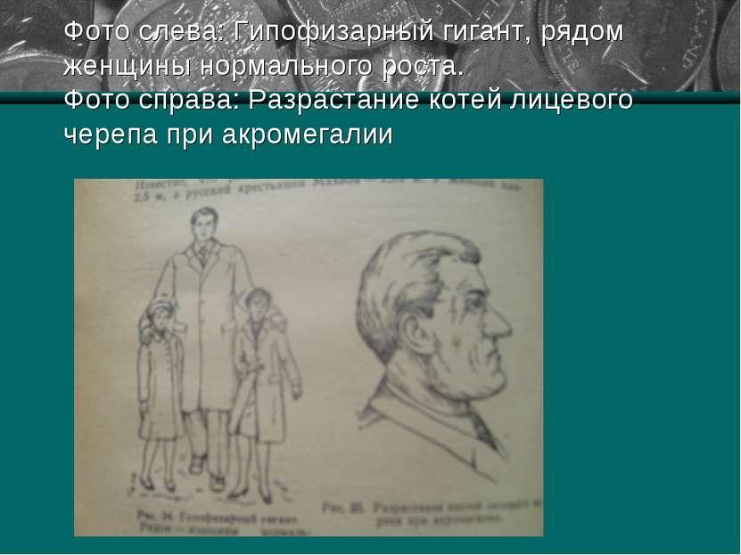 Фото слева: Гипофизарный гигант, рядом женщины нормального роста. Фото справа...