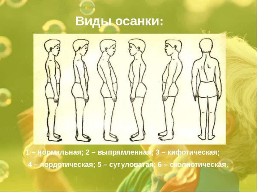 Виды осанки: 1 – нормальная; 2 – выпрямленная; 3 – кифотическая; 4 – лордотич...