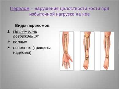 Перелом – нарушение целостности кости при избыточной нагрузке на нее Виды пер...