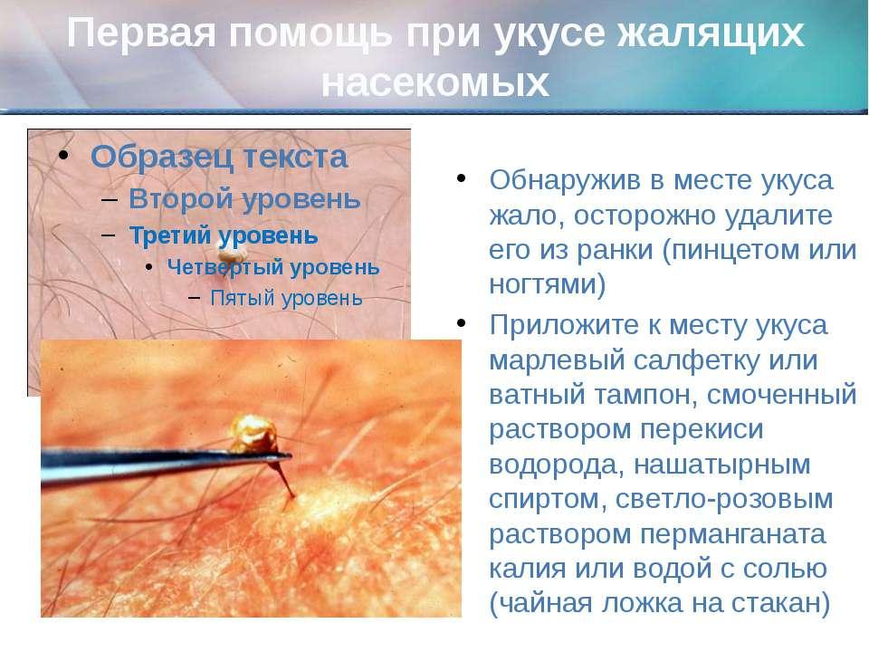 Первая помощь при укусе жалящих насекомых Обнаружив в месте укуса жало, остор...