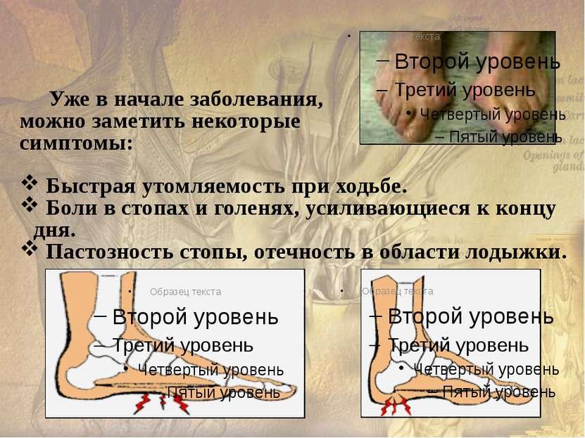 Здоровая стопа – путь к здоровью На подошве стопы находятся нервные окончания...