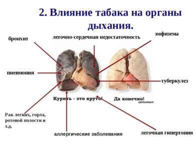2. Влияние табака на органы дыхания. пневмония бронхит Рак легких, горла, рот...