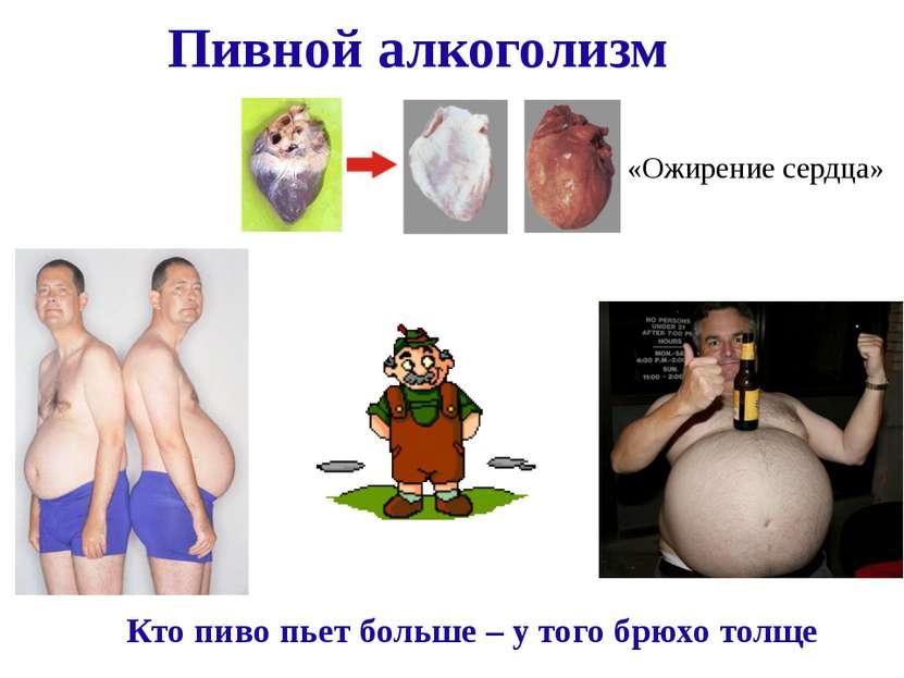 Пивной алкоголизм Кто пиво пьет больше – у того брюхо толще «Ожирение сердца»
