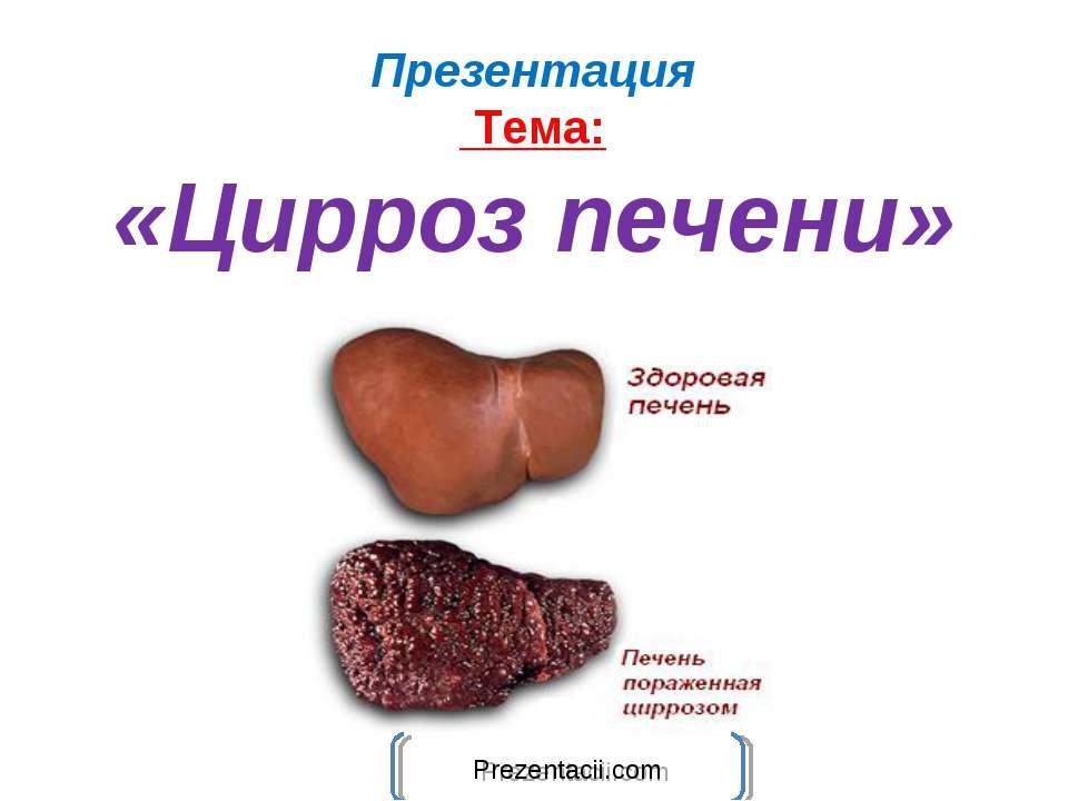 Презентация Тема: «Цирроз печени»