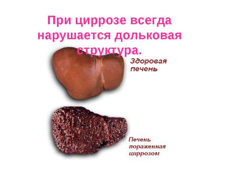 При циррозе всегда нарушается дольковая структура.