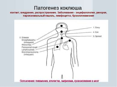 Патогенез коклюша контакт, внедрение, распространение. Заболевания - энцефало...